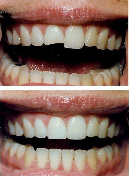 Cosmetic Treatments Gt Bonding Dr Prachi Patil S